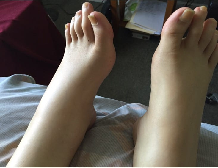 The Story Behind These Feet – Renee